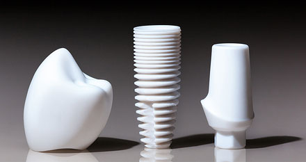dental implants | dentist neenah wi